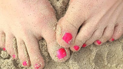 Limiter la douleur d'un oignon au pied (hallux valgus)