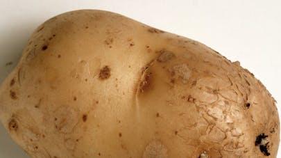 Une jeune femme a inséré une pomme de terre dans son vagin comme contraceptif