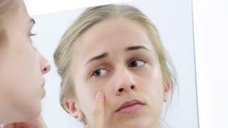 Votre ado a des complexes physiques: comment réagir?