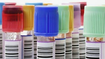 Cancer du côlon: un nouveau test de dépistage