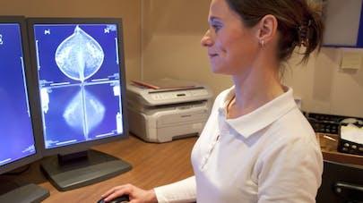Un lien possible entre cancer du sein et cancer de la prostate