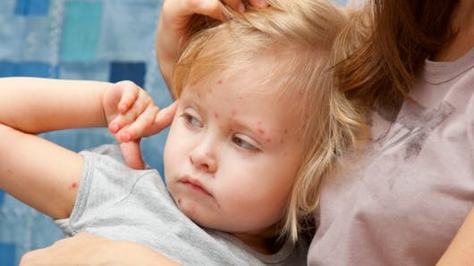 La varicelle en 5 questions