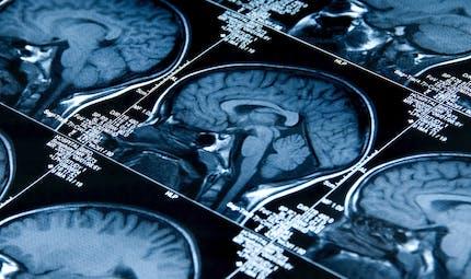 Parkinson: son origine enfin identifiée