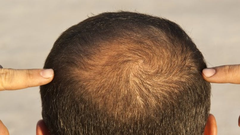 Quelles solutions pour lutter contre la perte de cheveux?