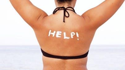 5 solutions pour apaiser un coup de soleil