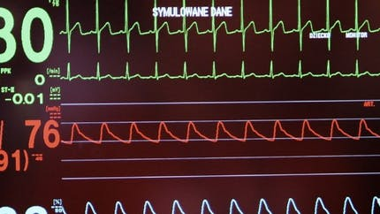 Cœur artificiel Carmat: on en sait plus sur le décès des deux patients
