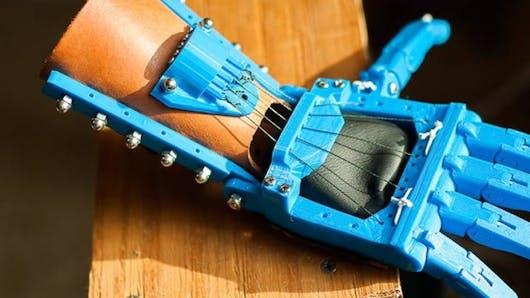 Impression 3D: première prothèse de la main pour un jeune français