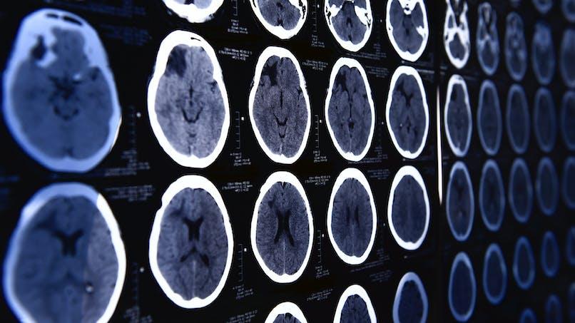 Alzheimer, une maladie transmissible?