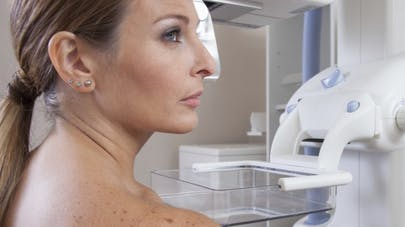 Dépistage du cancer du sein: remboursement à 100% pour les femmes à risque