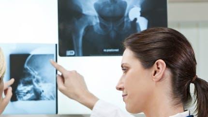 Une seule journée d'hôpital pour une prothèse de hanche? L'avis d'un expert