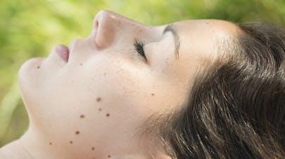 Cancer de la peau: compter ses grains de beauté pour évaluer les risques