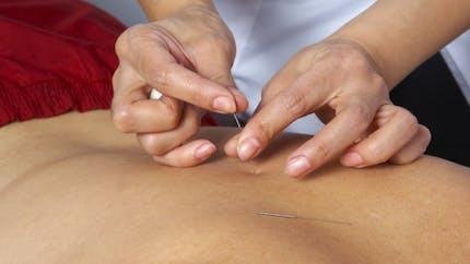 Acupuncture: dans quels cas nous vient-elle en aide?