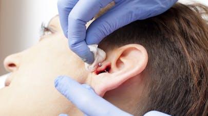 Le piercing au cartilage de l'oreille, une solution anti-migraine?