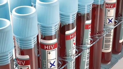 Un médicament contre l'alcoolisme efficace contre le sida?