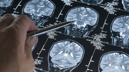 Cerveau: des chercheurs ont-ils trouvé la zone où se trouve le bonheur?
