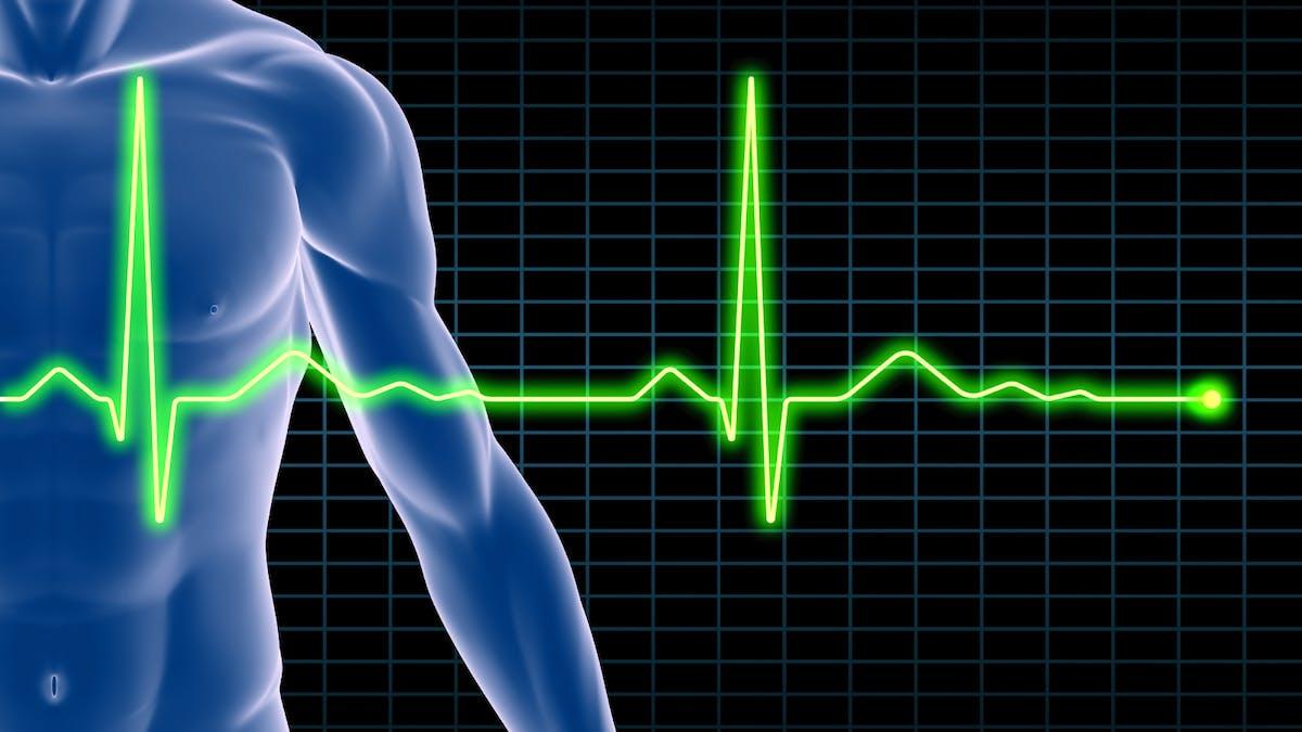 """Infarctus: un traitement innovant pour """"réparer"""" le cœur avec des cellules souches"""