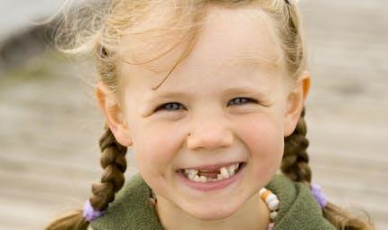 Ce que nos dents révèlent sur notre santé
