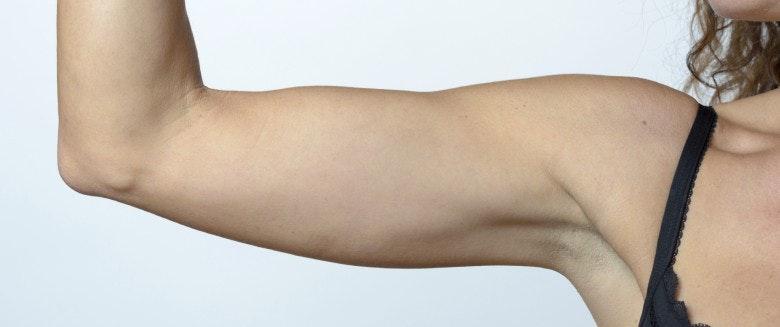 comment réduire la graisse des bras sans exercice