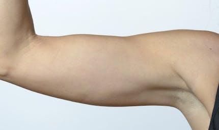Comment venir à bout de la graisse des bras sans chirurgie