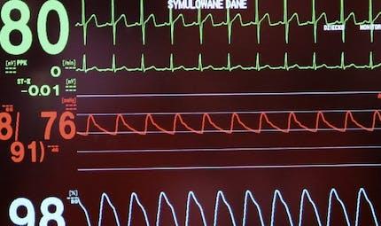 Décès du quatrième patient greffé avec un cœur Carmat: et maintenant?