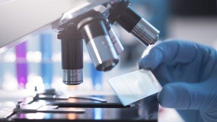 Maladie d'Alzheimer: vers une nouvelle piste d'immunothérapie