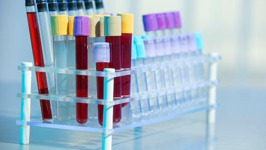 Allergie alimentaire: suffit-il d'une prise de sang pour la détecter?