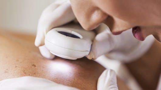 5 fausses croyances sur le cancer de la peau