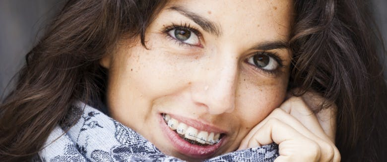 10 Choses A Savoir Sur L Orthodontie Pour Adultes Sante Magazine