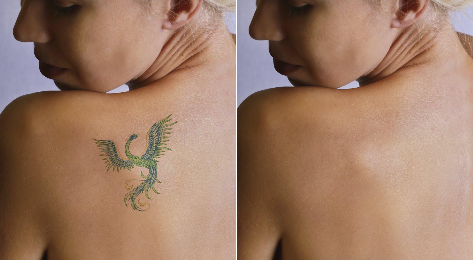 enlever un tatouage au laser | santé magazine