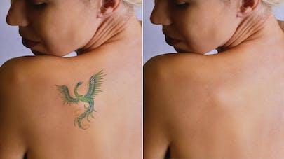 Enlever un tatouage au laser