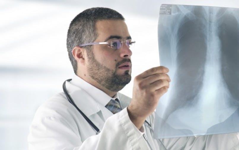Mediator: responsable aussi de fibrose pleurale