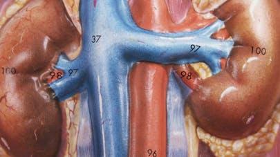 Greffe de reins ou dialyse: les patients ne sont pas égaux