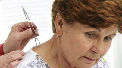 Maladie de Lyme: des médecins se mobilisent pour une reconnaissance officielle
