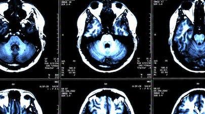 Sclérose en plaques: l'espoir d'un nouvel anticorps-médicament
