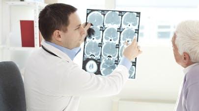 Epilepsie: un cerveau virtuel pour mieux comprendre la maladie