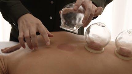 A quoi sert la cupping thérapie, utilisée par les athlètes des JO?