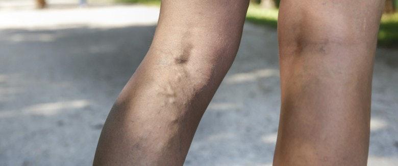 varice pied traitement