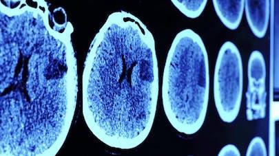 Alzheimer: des chercheurs évoquent la piste des anti-inflammatoires