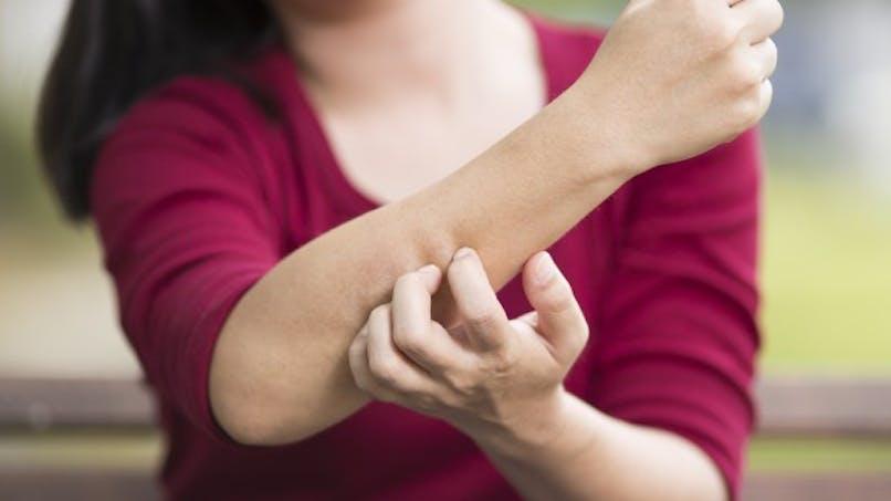 5 causes surprenantes d'urticaire