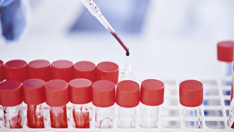 Septicémie, bactériémie : comment réagir ?