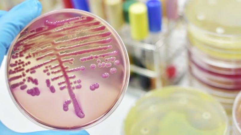 3 choses à savoir sur le sepsis (septicémié)