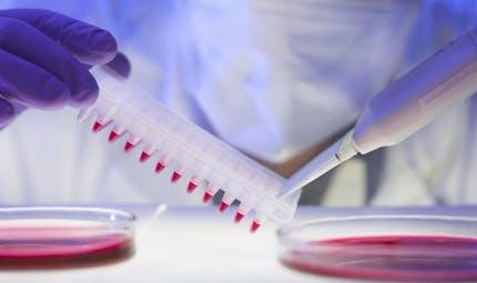 Les tests génétiques pour éviter la chimio sont-ils fiables?