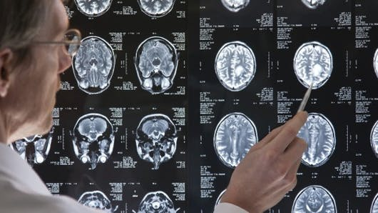Fibromyalgie: identifier la maladie grâce à sa réponse cérébrale