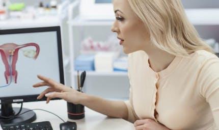 Cancer du col de l'utérus: quelle est la meilleure stratégie de dépistage?