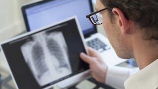 Un nouveau traitement encourageant contre la tuberculose