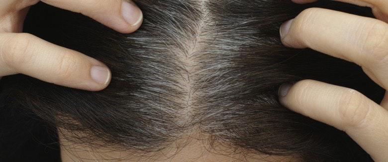 Pourquoi les cheveux devient gris