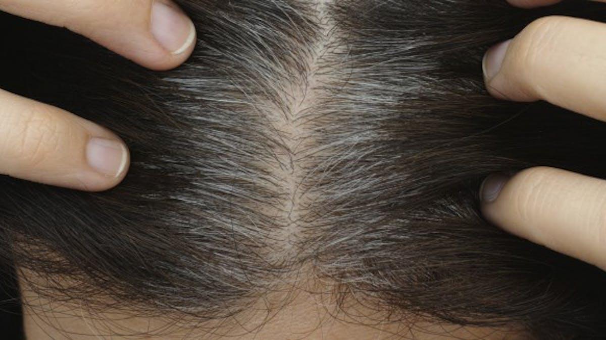 Voici pourquoi vous avez des cheveux blancs à 20 ans