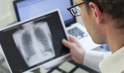 La pneumonie, une maladie à prendre au sérieux