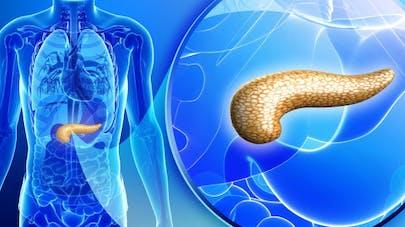 Pourquoi le cancer du pancréas progresse-t-il autant?