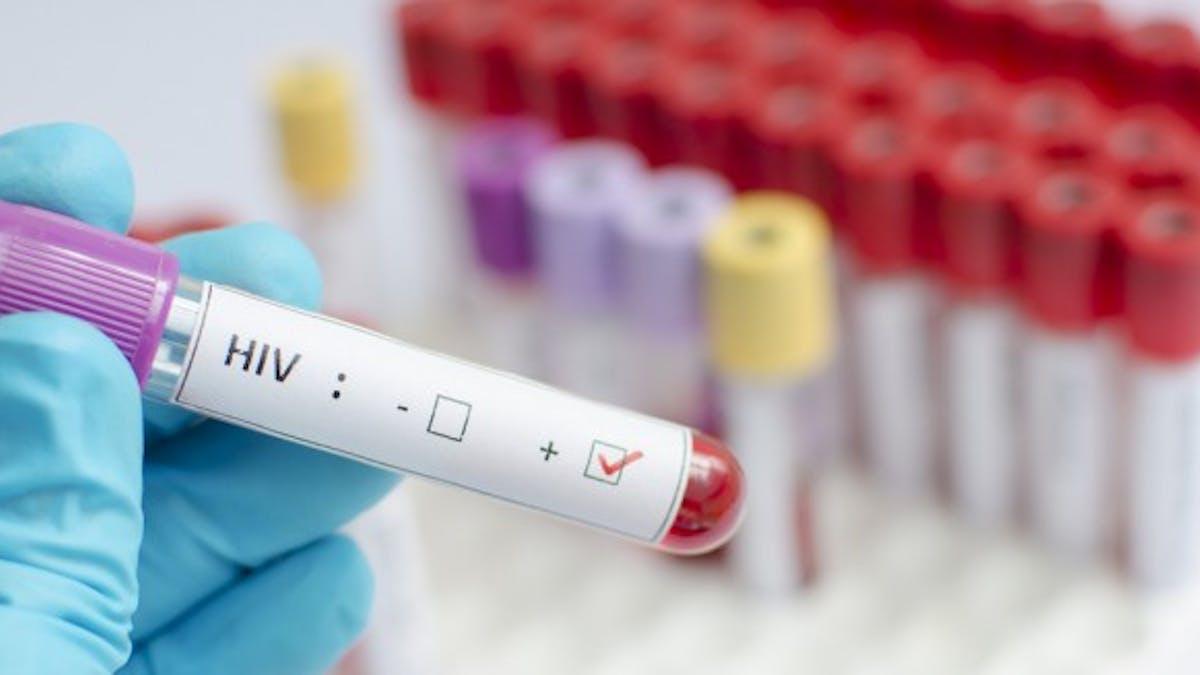 Vivre avec le VIH: des efforts restent à faire